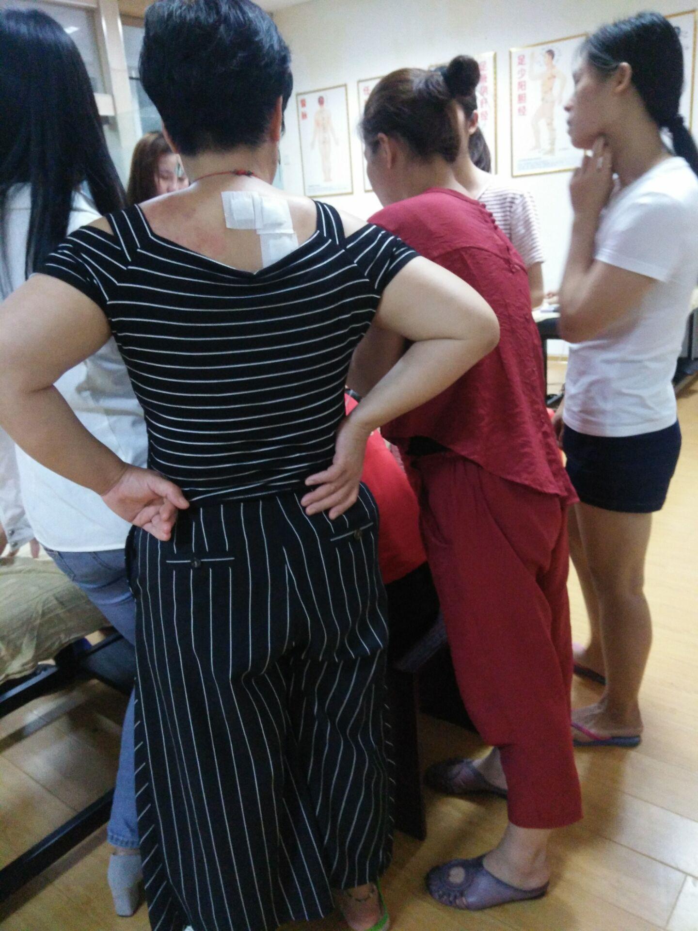 崇左哪里有中医针灸推拿培训崇左现场针灸推拿拔罐刮痧培训班