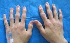 武汉手指关节胀痛的原因有哪些